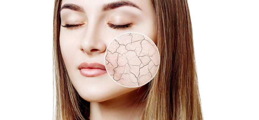 「プラセンタ美容液」で皮膚のバリア強化も! 話題の「美肌菌ケア」との関係は?